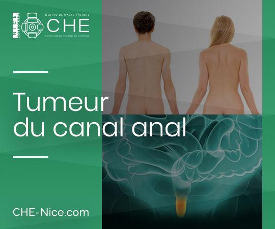 Tumeur du canal anal