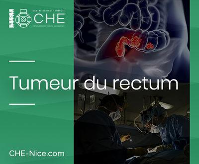Tumeur du rectum