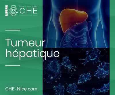 Tumeurs hépatiques
