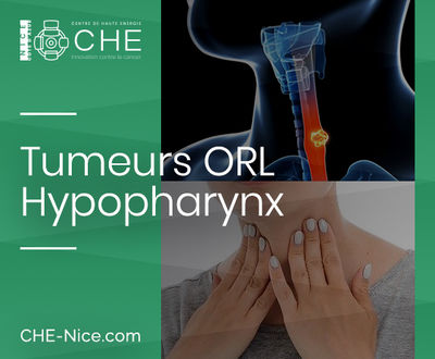 Tumeurs ORL - Hypopharynx