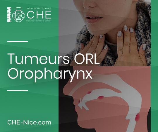 Tumeurs ORL - Oropharynx