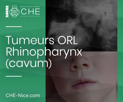 Tumeurs ORL - Rhino-pharynx (cavum)