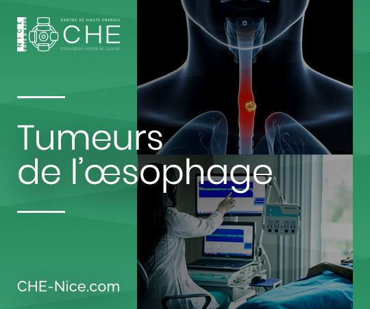 Tumeurs de l'œsophage