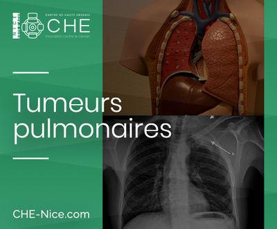Tumeurs pulmonaires