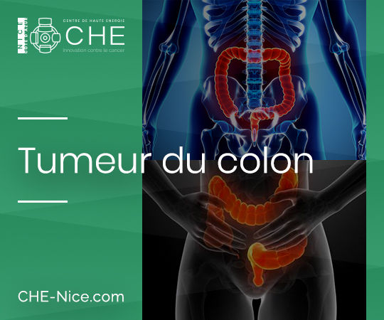 Tumeur du colon