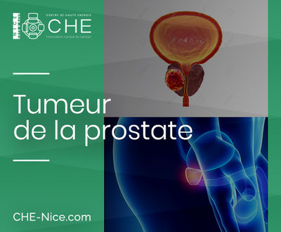 Tumeur de la prostate