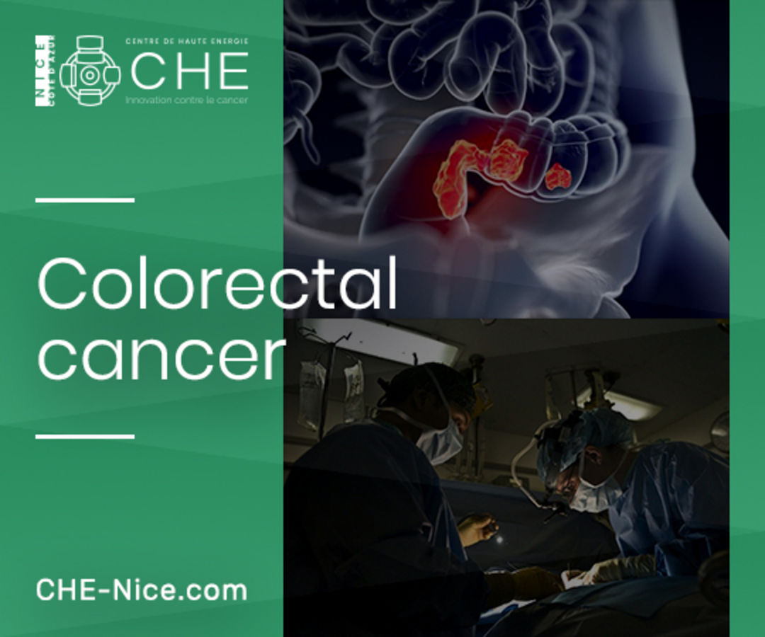 Colorectal Cancer Treatment In Nice
