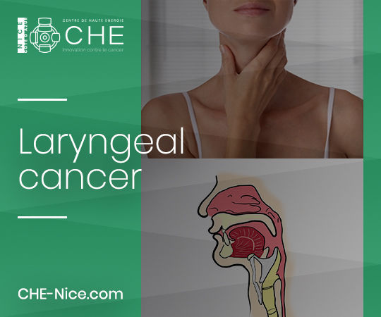 ENT oncology - Laryngeal cancer