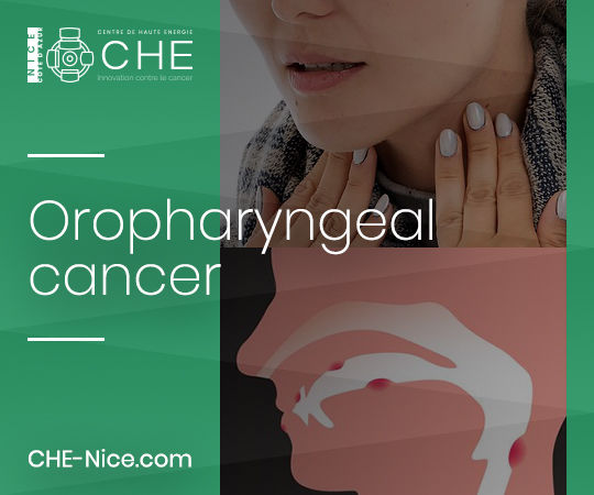 ENT oncology - Oropharyngeal cancer