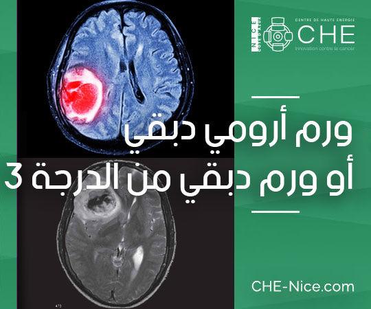 ورم الدماغ الأولي