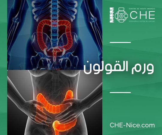 سرطان القولون المستقيم