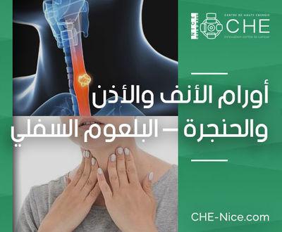 سرطان الحلق والحنجرة