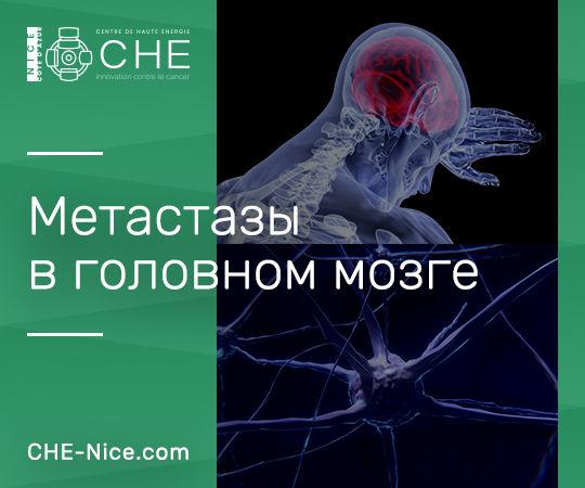 Метастазы головного мозга