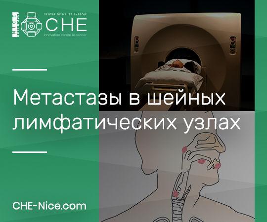 Опухоли органов ЛОР и метастазы в шейных лимфатических узлах