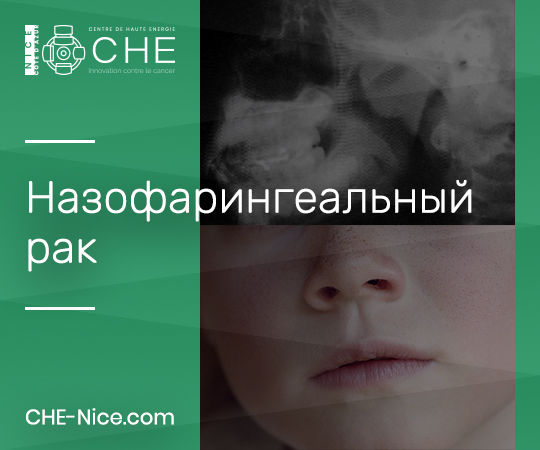 Онкология ЛОР - Назофарингеальный рак