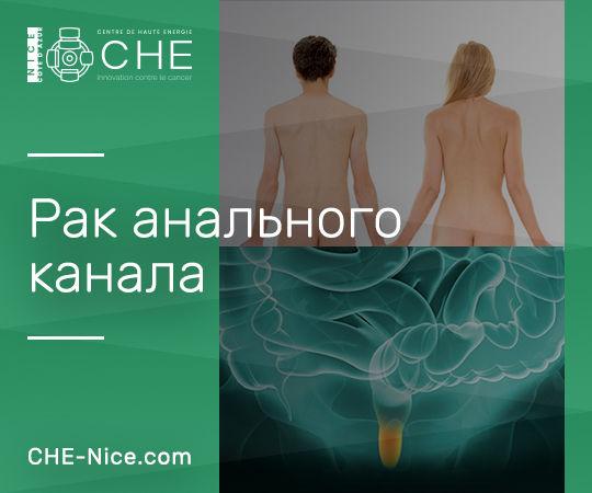 Рак анального канала