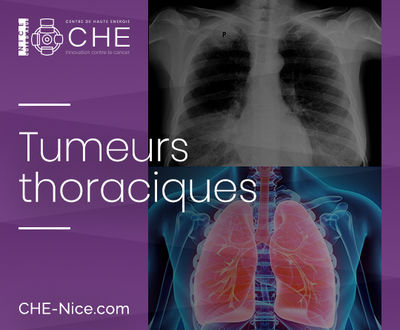 Les tumeurs thoraciques