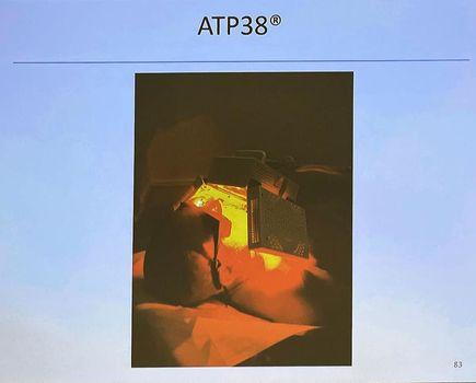 La photobiomodulation utilisée au centre de haute énergie