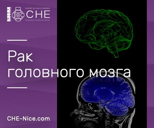 opuholi golovnogo mozga